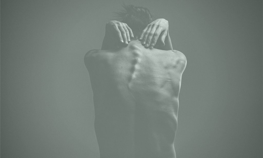 A person with scoliosis